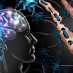 Este dieta importanta la pacientii cu scleroza multipla?